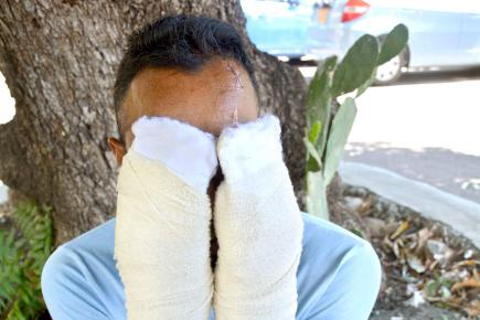 Ce propriétaire de quincaillerie a été blessé sur plusieurs parties du corps.
