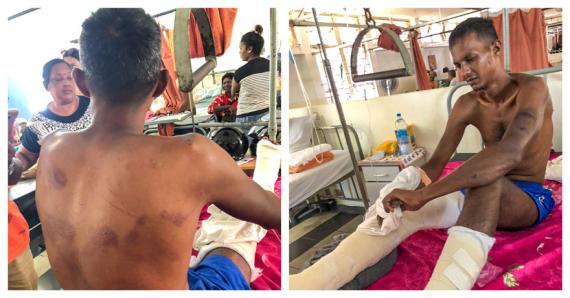 Krishna Seetul se trouve actuellement à l'hôpital SSRN où il doit subir une délicate intervention chirurgicale aux jambes.