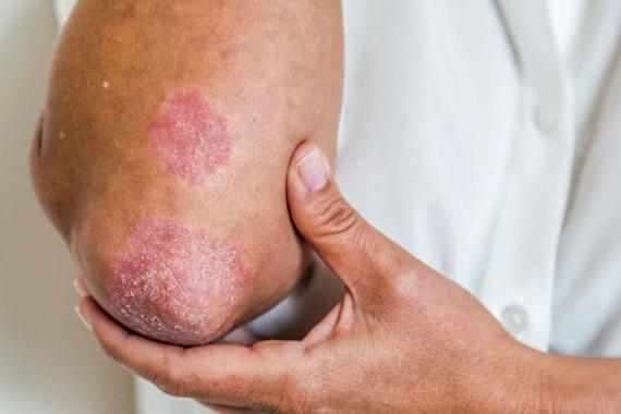 Cette maladie se présente souvent par l'apparition de plaques rougeâtres et d'écailles blanches sur différentes parties du corps.
