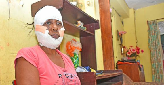 Cette habitante de Ste-Croix a reçu huit coups de couteau au visage et est à jamais défigurée. à gauche, une cliché d'elle avant le drame.