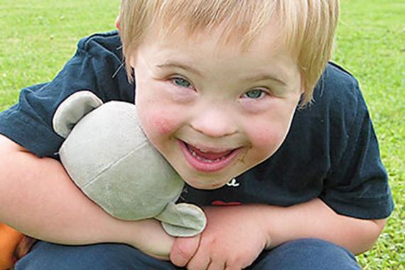 La trisomie 21 est identifiable dès la naissance, par une physionomie caractéristique, puis par un retard mental et psychomoteur lors du développement de l'enfant.