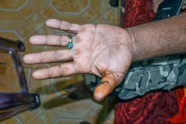 La blessure de Yasser a nécessité dix points de suture.
