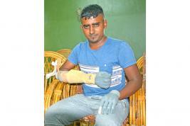 Les prothèses d'Aslam Noursing ont coûté plus de Rs 2 millions.