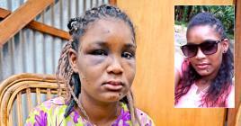 Son visage en dit long sur la violence qu'elle a subie.