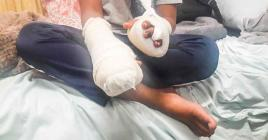 Le garçonnet est rentré chez lui les mains plâtrées après une semaine d'hospitalisation.