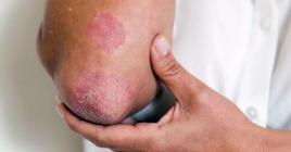 Pour diminuer les symptômes de cette maladie de la peau, la nutritionniste Aroushinee Goorapah conseille la consommation de produits adéquats.