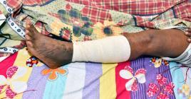 L' attendant a été agressé au sabre, à la jambe gauche.